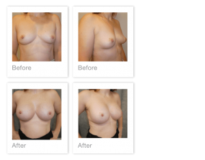 David Oliver Breast Augmentation surgery before & after March 2020