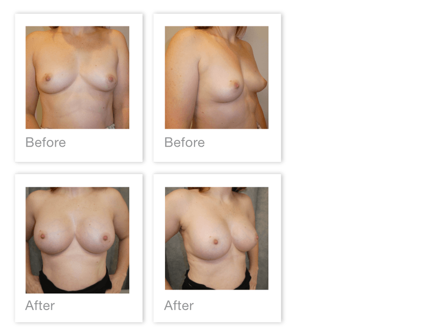 David Oliver Before & After Bilateral Breast Augmentation Surgery in Devon March 2020