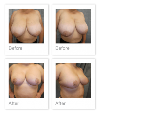 David Oliver Breast Reduction surgery Devon before & after March 2020