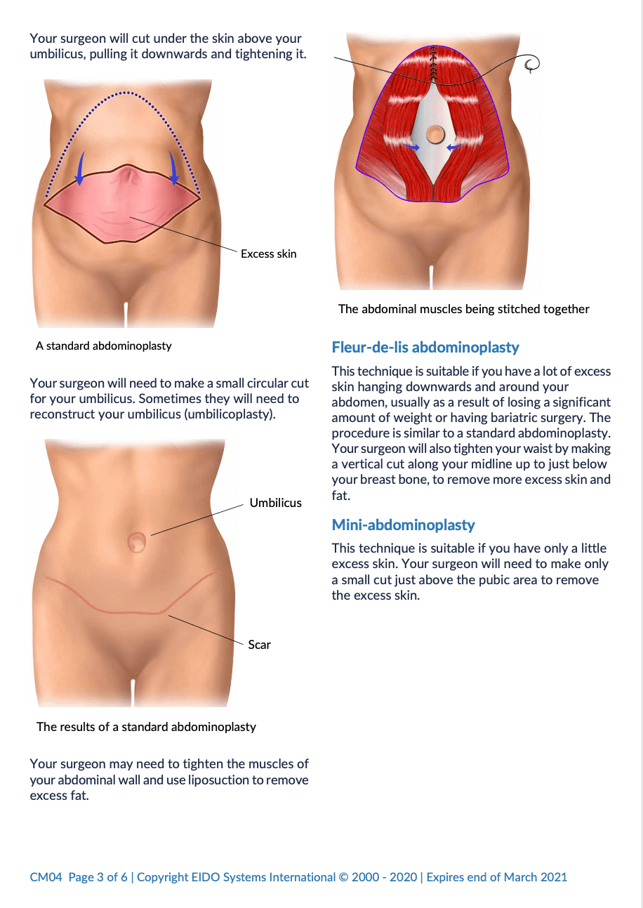 Abdominoplasty with David Oliver Cosmetic Surgery - Ramsay Health Information Leaflet