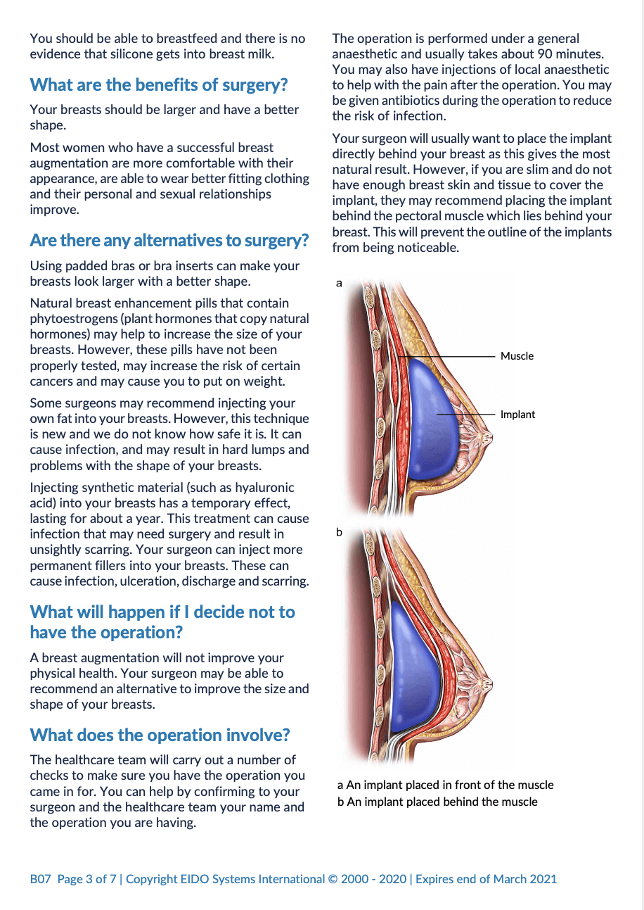 Breast Augmentation with David Oliver Cosmetic Surgery - Ramsay Health Information Leaflet