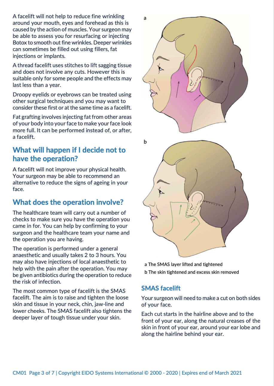 Facelift with David Oliver Cosmetic Surgery - Ramsay Health Information Leaflet