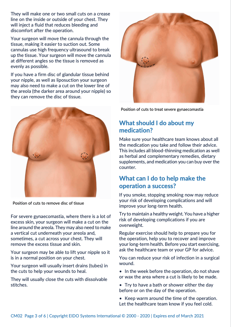 Gynaecomastia with David Oliver Cosmetic Surgery - Ramsay Health Information Leaflet