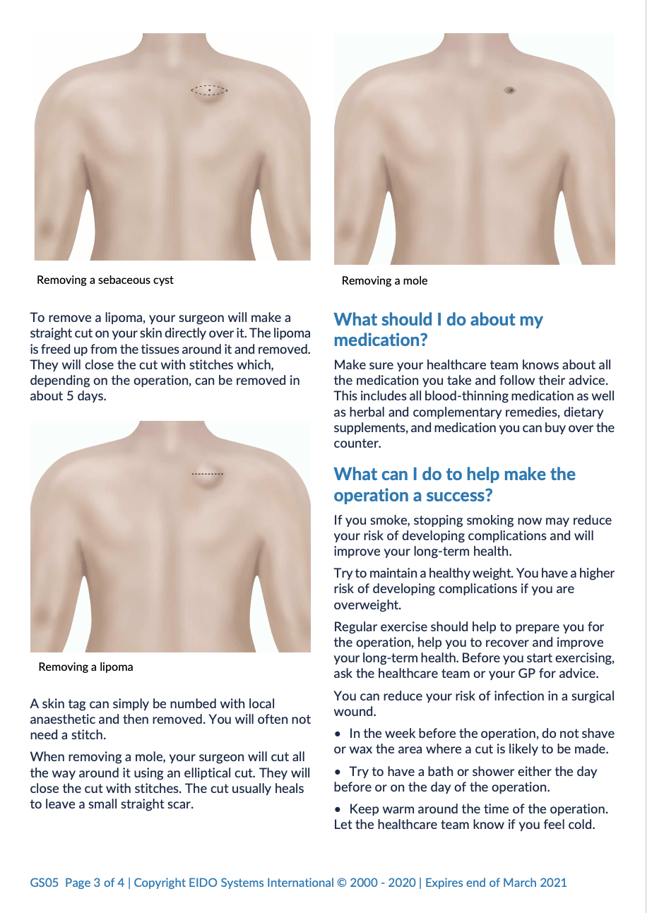 Removal of Benign Skin Lesions with David Oliver Cosmetic Surgery - Ramsay Health Information Leaflet