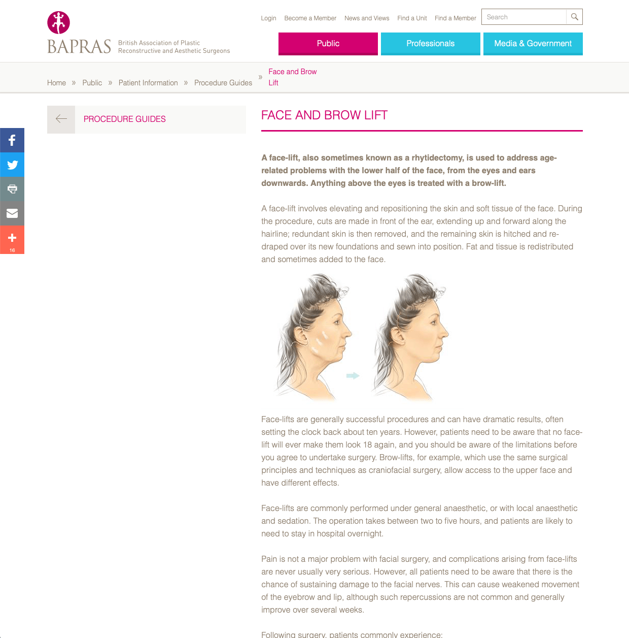 BAPRAS Facelift website patient guidance David Oliver Cosmetic Surgeon