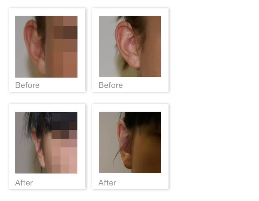 David Oliver Otoplasty surgery before & after Nov 2020