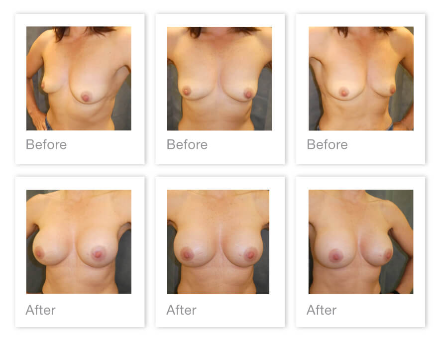 David Oliver Breast Augmentation surgery Exeter before & after results Dec 2020
