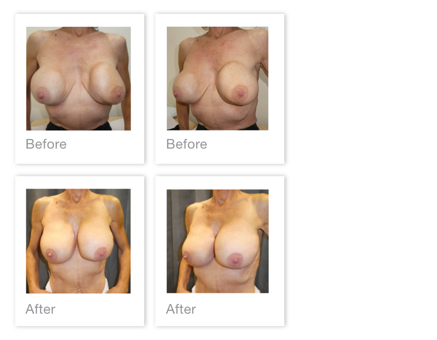 David Oliver Breast Reduction surgery before & after Feb 2020