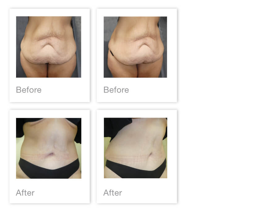 David Oliver Abdominoplasty Surgery before & after Results Jan 2021
