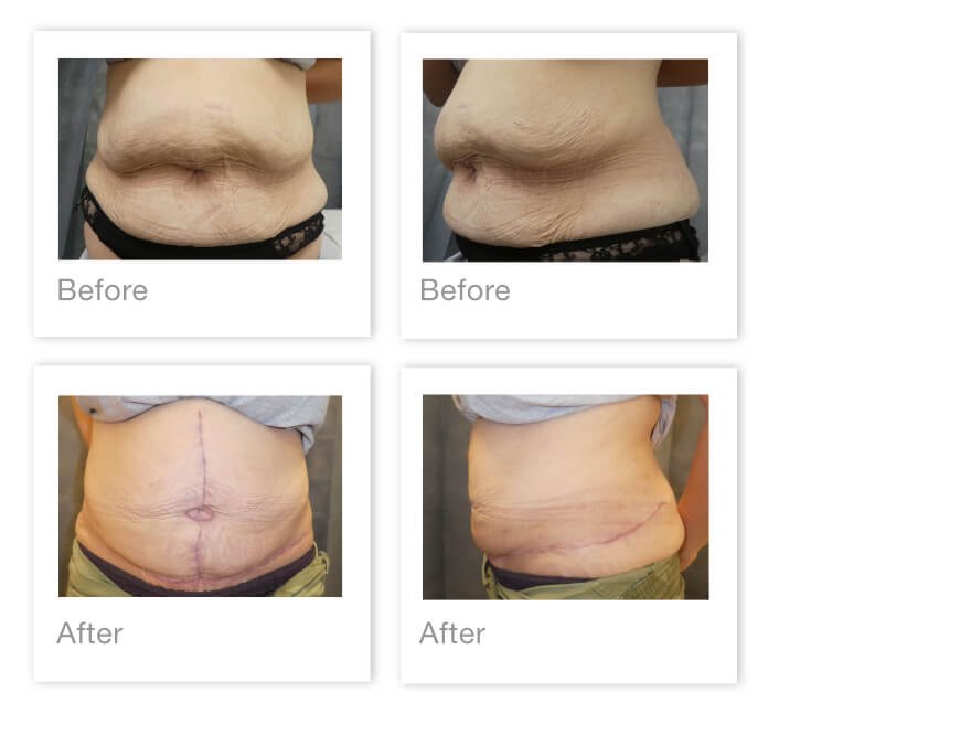 David Oliver Abdominoplasty surgery before & after Jan 2021