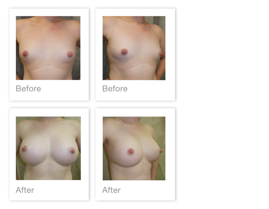 David Oliver Breast Augmentation Surgery before & after Results Jan 2021