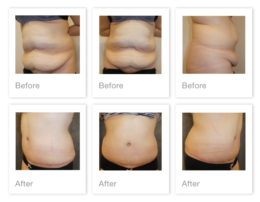 David Oliver Abdominoplasty surgery results before & after Feb 2021