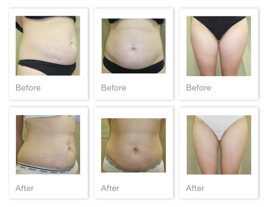 David Oliver Cosmetic Surgery Liposuction Before & After Surgery Results Taunton Patient April 2021