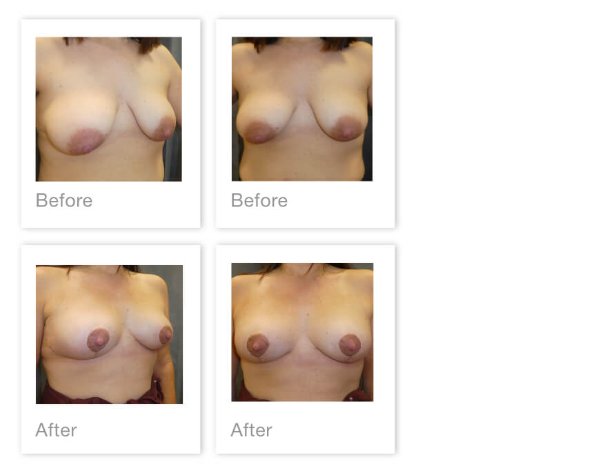David Oliver Breast Mastopexy surgery before & after May 2021