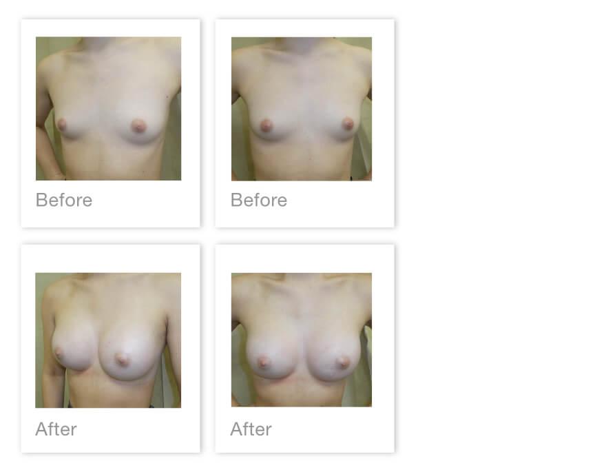 David Oliver Bilateral breast augmentation surgery before & after Devon June 2021