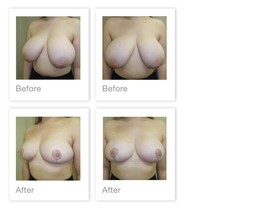 David Oliver Bilateral breast reduction surgery before & after Exeter Devon 25 June 2021