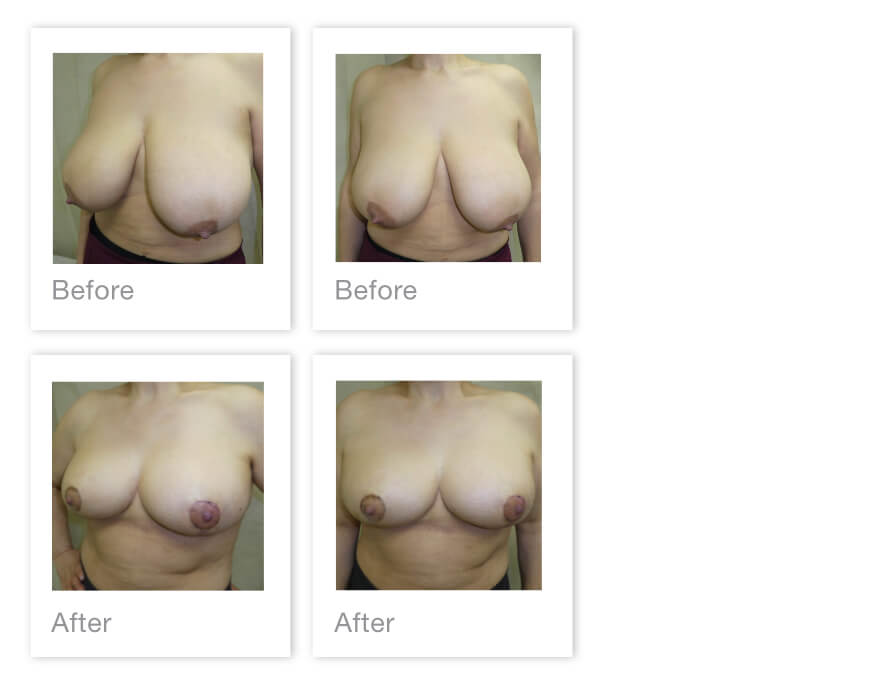 David Oliver Breast Reduction surgery Torquay, Devon before & after result June 2021