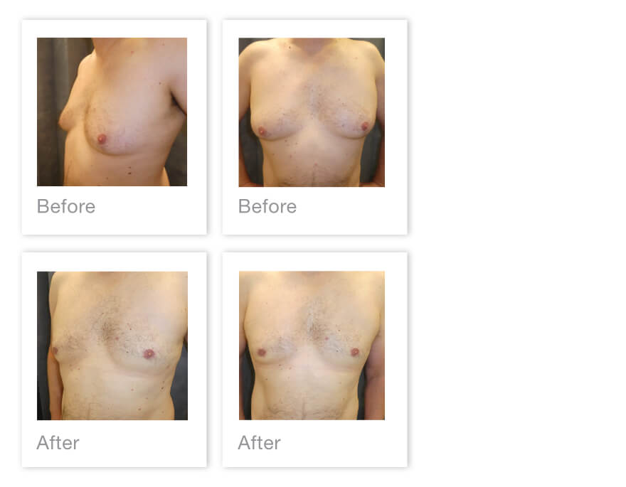 David Oliver Gynaecomastia Male Breast Reduction surgery Padstow, Cornwall before & after June 2021