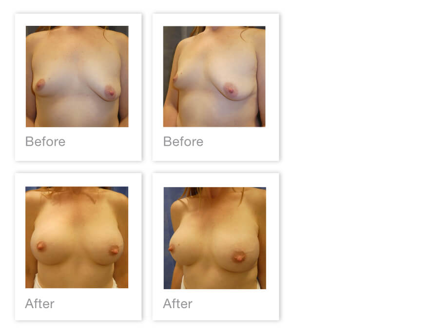 David Oliver Breast Augmentation Surgery Before After Exeter Devon 16 July 2021