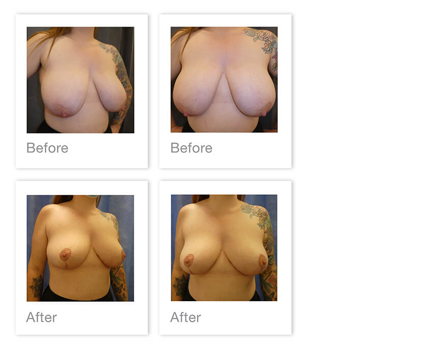 David Oliver Breast Reduction Surgery Before After Exeter Devon August 2021