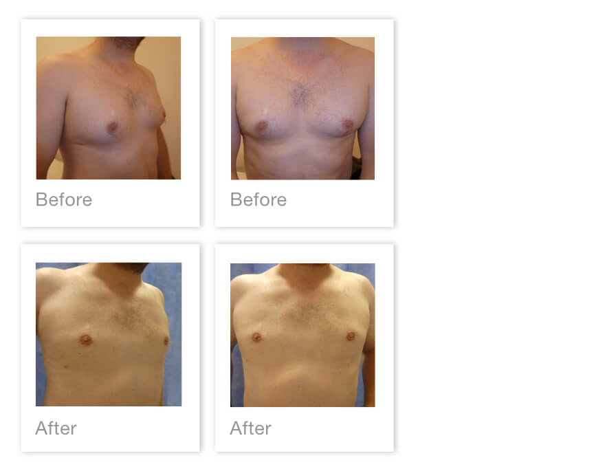 David Oliver Gynaesomastia (Male Breast Reduction) Surgery Before After Plymouth Devon 24 August 2021